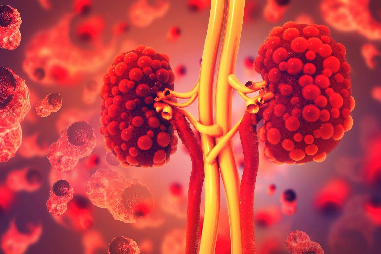 Cos'è la malattia renale policistica ?