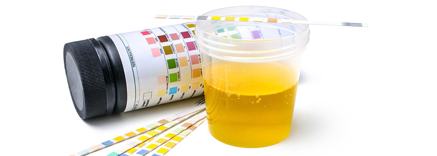 infezioni alle vie urinarie - analisi copertina